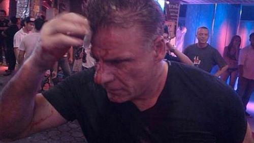 Du khách bị đánh vì từ chối mua dâm ở thái lan