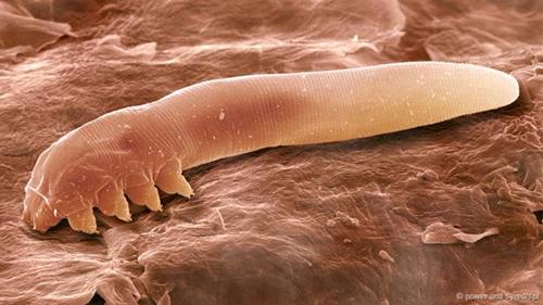 Những bí ẩn về loài rận ăn ngủ giao phối và chết trên mặt người